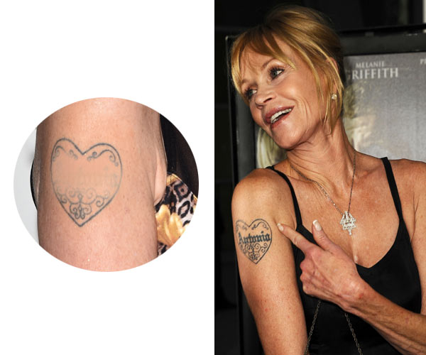Tatuajes Que No Son Eternos