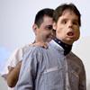Oscar, el primer hombre en recibir un trasplante total de cara: 'Me siento feliz'