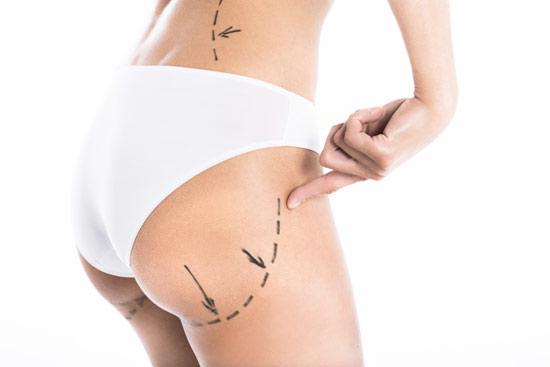 Cirugía estética: ¿qué les preocupa a los hombres y qué a las mujeres?