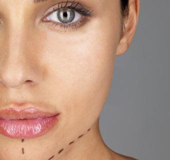 Medicina estética: ¿qué hay detrás de los llamados hilos mágicos?