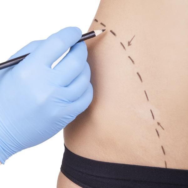 Cirugía estética: ¿cómo ha de ser tu dieta antes y después de la intervención?