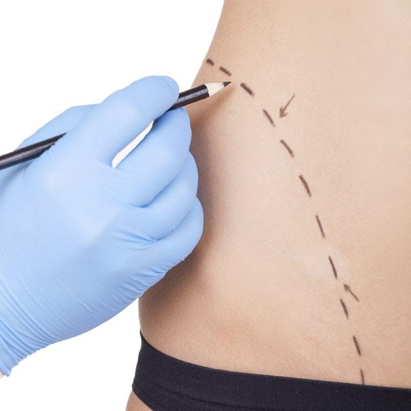 Cirugía plástica: ¿mito o realidad?