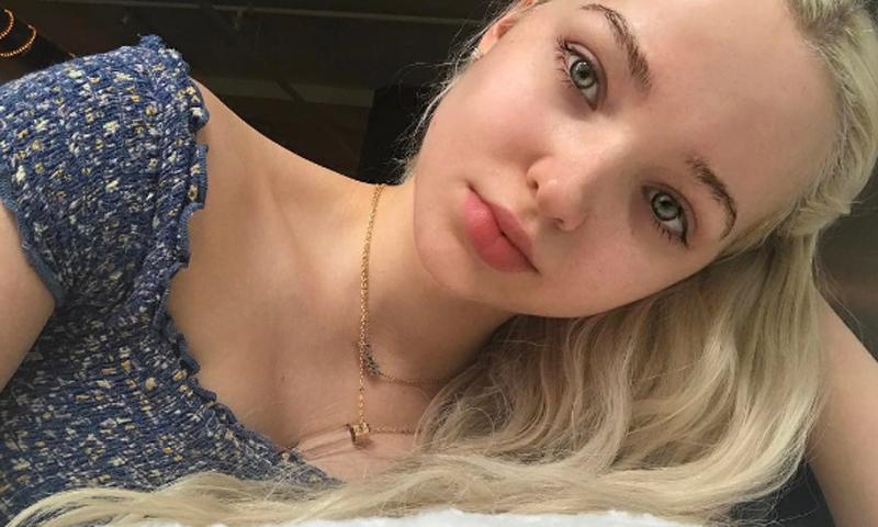 Dove Cameron sin maquillaje: consejos para tener una piel perfecta