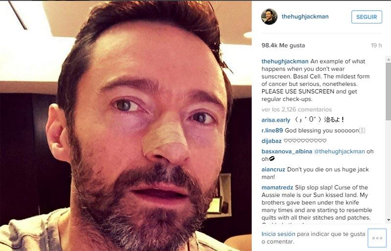 Hugh Jackman entra por quinta vez en quirófano para tratar el cáncer que padece