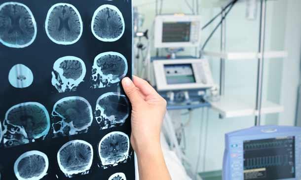 Demencia con cuerpos de Lewy: Cuando se trastoca la función cerebral
