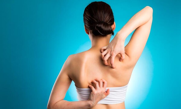 eczema infección de la piel remedios caseros