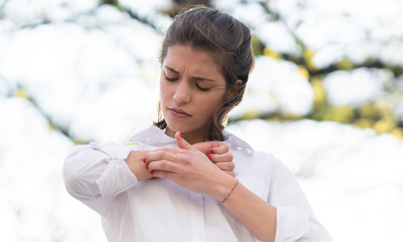 Dermatitis atópica, mucho más que un simple picor de la piel