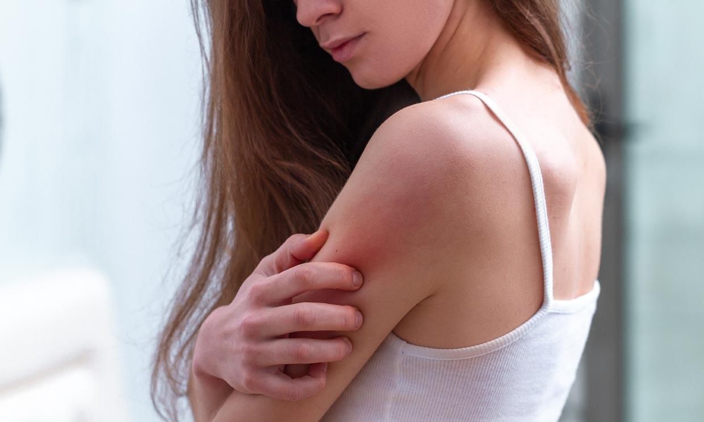 ¿Hasta qué punto influye la alimentación en la evolución de la dermatitis?