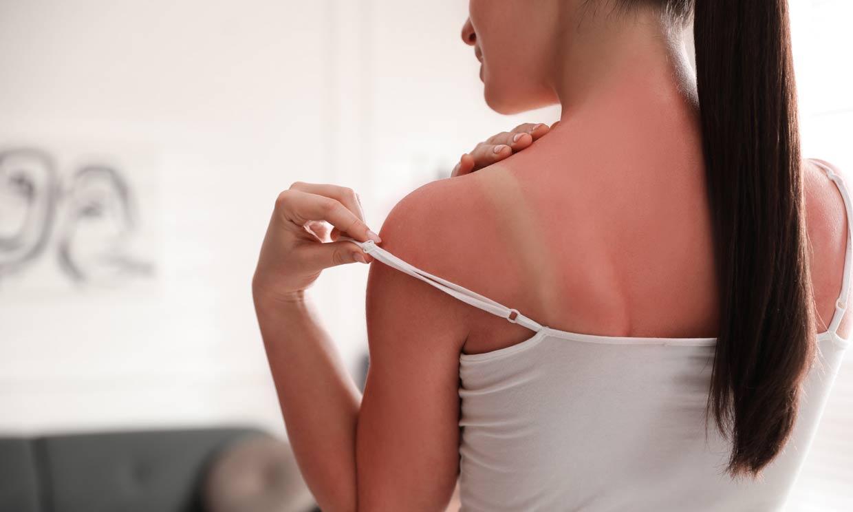 Decálogo de consejos para aliviar y cuidar una quemadura solar