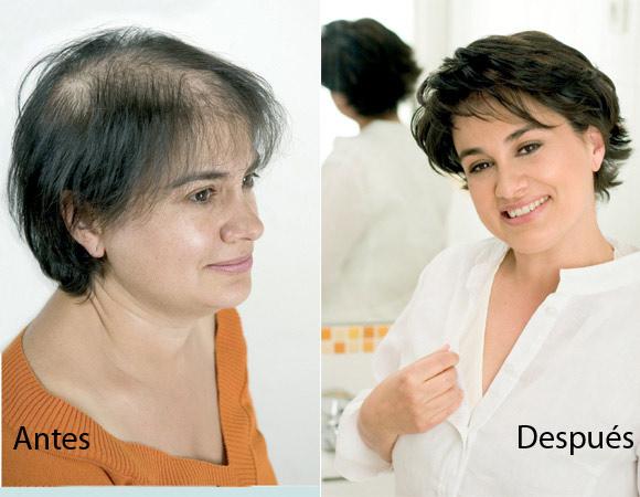 Consejos para frenar la caida de cabello