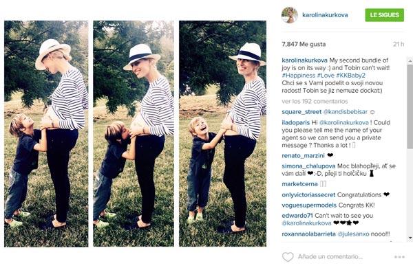 Karolina Kurkova ¡confirma su embarazo!