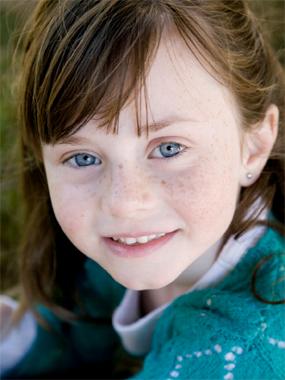 manchas oscuras en la piel de niños