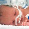 Conozcamos las dificultades de un parto prematuro