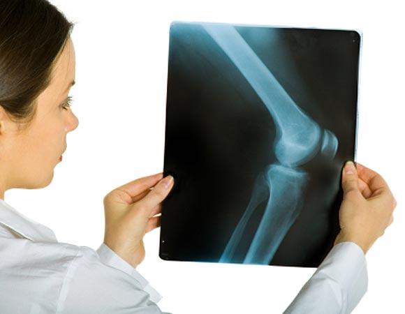 rayos x en embarazadas consecuencias