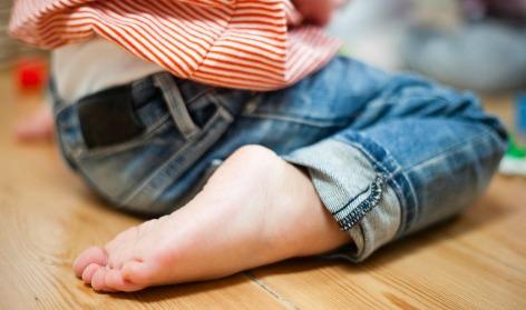 ¿Cuáles son las anomalías más comunes en los pies de los niños?