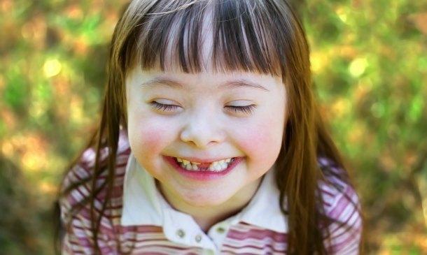 ¿Quiénes son los niños con capacidades especiales?