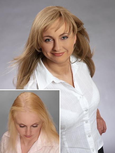 La loción de hombre contra la caída de los cabello