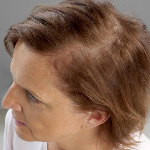 Sylvia: 'Los sistemas Hair & Hair de Svenson me han cambiado la vida'