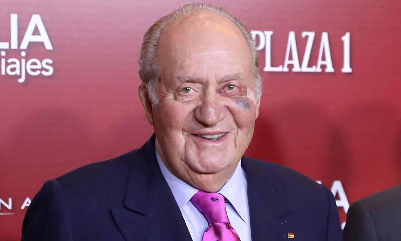Don Juan Carlos, intervenido de una lesión cutánea por sobreexposición al sol