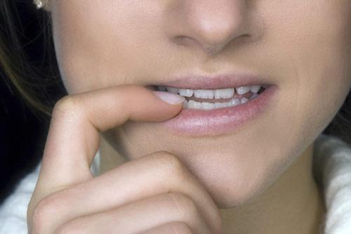 ¿Puede afectar el estrés a tu sonrisa?