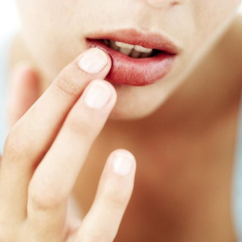 ¿Sueles tener herpes en los labios?