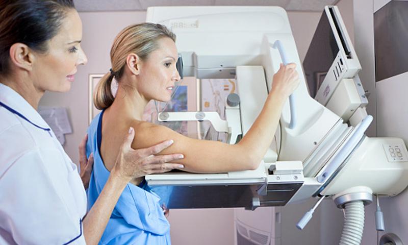 Cinco peligrosos mitos sobre las mamografías que deberías desterrar de una vez por todas