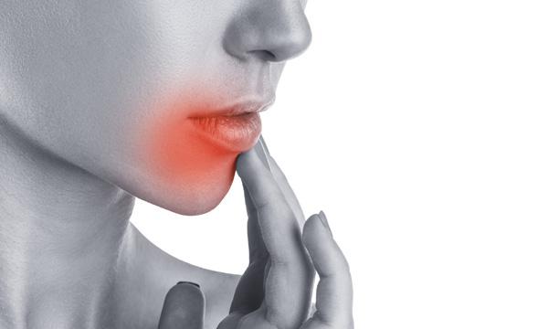 Sintomas del herpes en la cabeza