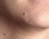 Eczema y dermatitis atópica