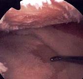 Artroscopia