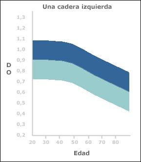 grafico densidad: