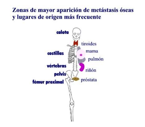 cancer de pulmon con metastasis: